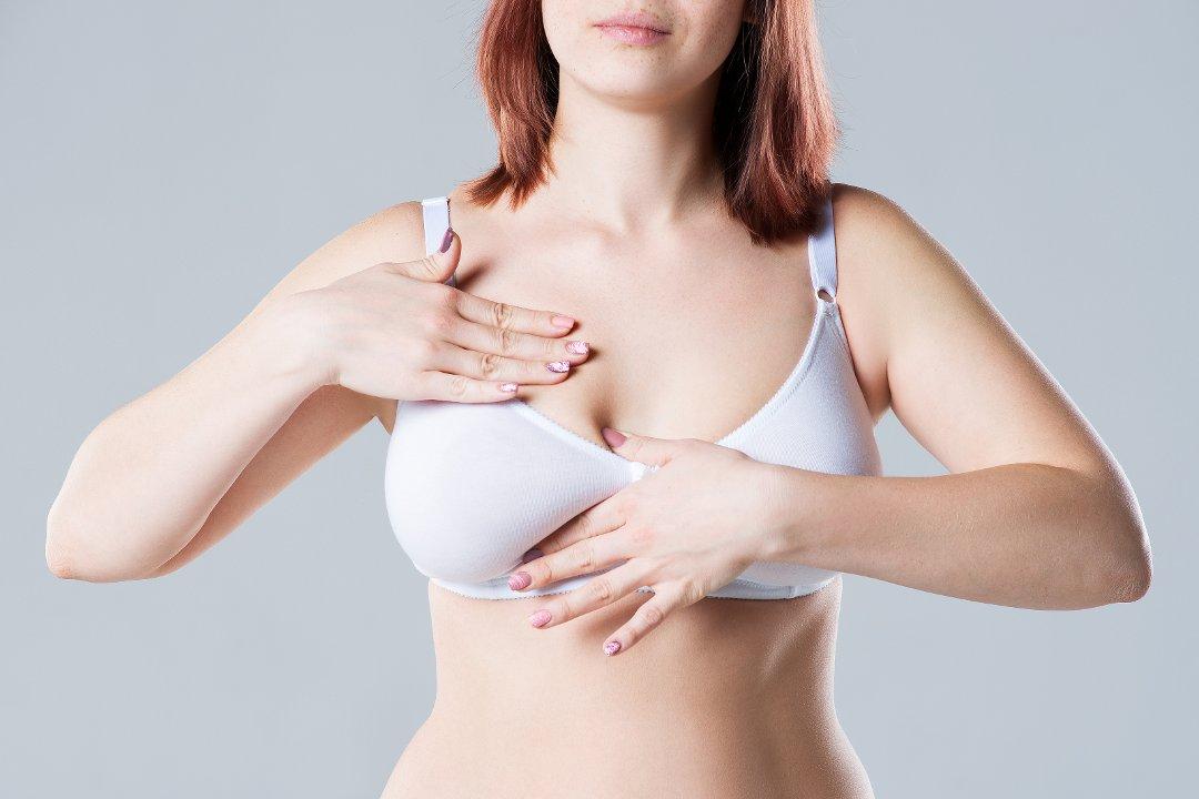 Ptose mammaire et lifting des seins